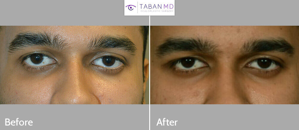 24 year old male, with inherited eye asymmetry, underwent customized right orbital decompression to reposition the right eyeball for better eye symmetry. Before and 3 months postoperative photos after orbital plastic surgery are shown.
