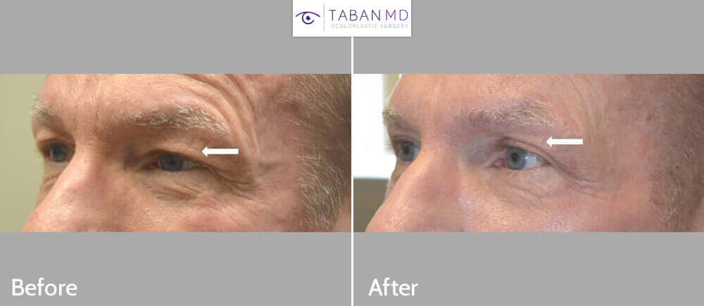 65+ year old male, complained of hooded saggy upper eyelids. He underwent cosmetic male upper blepharoplasty to look more rested. Before and 2 months after eyelid surgery photos are shown.