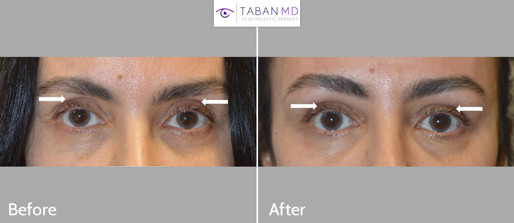 51 year old female, complained of hollow sunken upper eyelids with loose skin. She underwent upper blepharoplasty and upper eyelid filler injection. Before and 6 weeks after photos are shown.