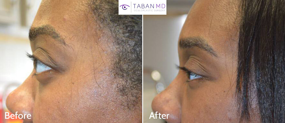 31 year old African American female, with inherited bulging eyes due to shallow orbits and lower eyelid retraction with sclera show. She underwent cosmetic orbital decompression and lower eyelid retraction surgery. Before and 3 months after transforming eye plastic surgery photos are shown.