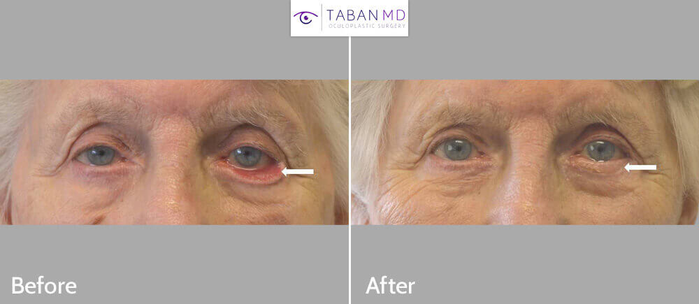 93 year old female, with severe age related left lower eyelid ectropion underwent ectropion repair with skin graft. Before and 3 months after eyelid surgery photos are shown.