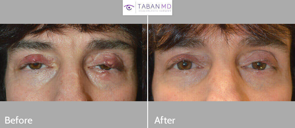 Middle age man with severe blepharitis and multiple eyelid styes and chalazions, underwent drainage of multiple eyelid styes. Before and 1 month after photos are shown.