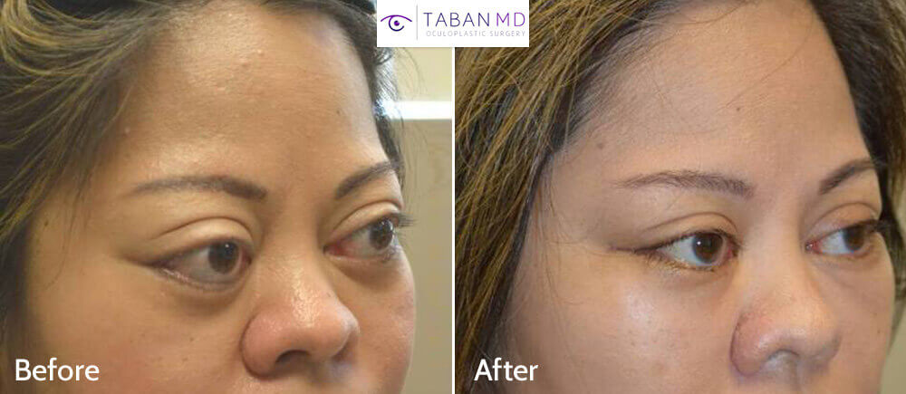 38 year old Asian female, with severe bulging eyes due to Graves thyroid eye disease, along with lower eyelid retraction with scleral show. She underwent combined orbital decompression surgery and lower eyelid retraction surgery. Before and 6 weeks after transforming eye plastic surgery photos are shown.
