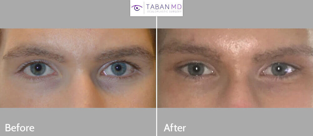 Young male, complained of inherited droopy lower eyelids with sclera show and sad looking eyes. He wanted more almond shape eyes. He underwent lower eyelid retraction surgery (without spacer graft) to create more almond eyes.