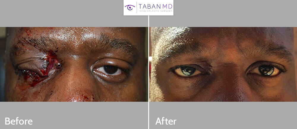 Young man, with severe right upper eyelid and canalicular (tear duct) laceration from motor vehicle accident, underwent eyelid laceration repair. Before and 3 months postoperative photos are shown.