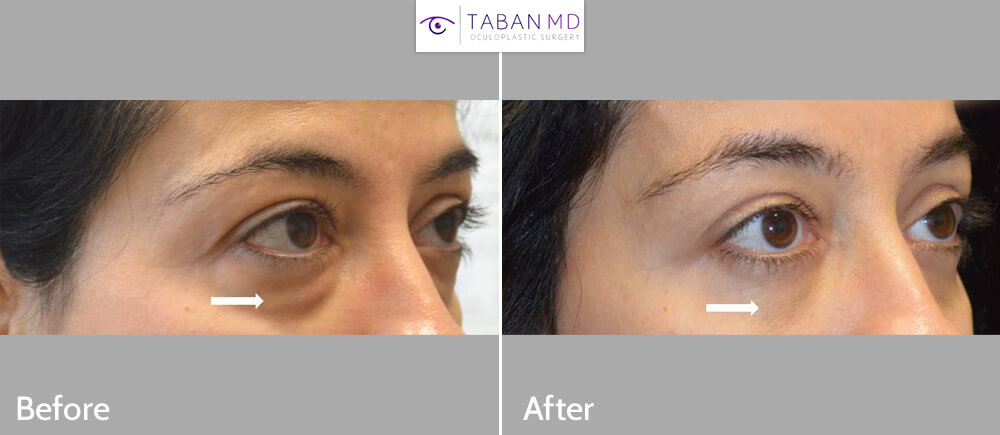 46 year old female, looking tired due to under eye fat bags and dark circles, underwent transconjunctival lower blepharoplasty with eye fat bags repositioning to surrounding hollow area plus skin pinch excision. Before and 2 months after cosmetic eyelid surgery photos are shown.