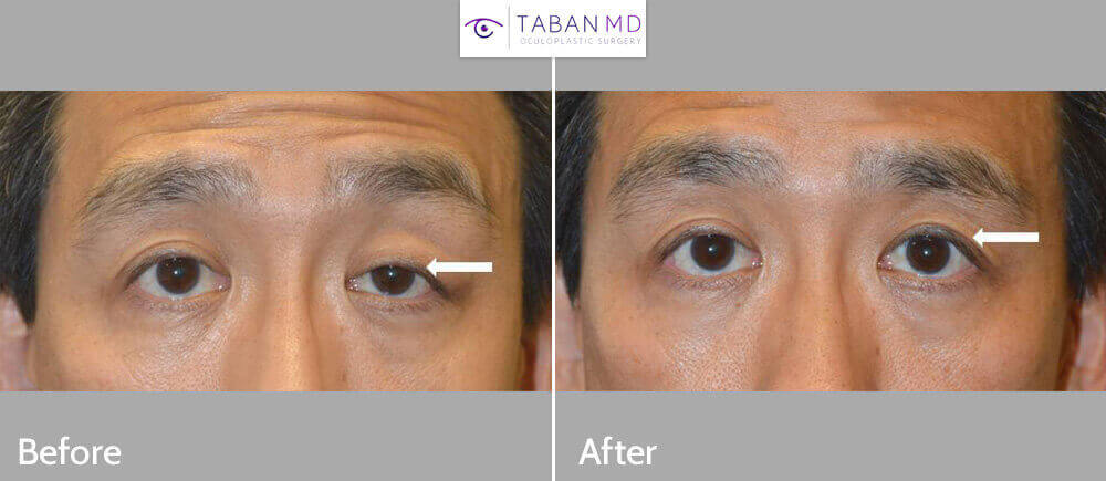 Middle age Asian male, complained uneven eyes with droopy left upper eyelid (ptosis). He underwent scarless left upper eyelid ptosis surgery. Before and 2 months after eyelid procedure photos are shown. Note improved eye symmetry.