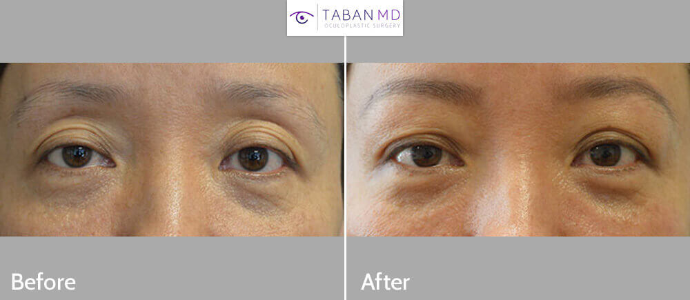 Middle age Asian female, with deflated saggy upper eyelids with excess wrinkles and upper eyelid skin folds, underwent nonsurgical upper eyelid lift using Belotero Filler injection in upper eyelids and under eyebrows. Before and 1 month post-eyelid filler injection photos are shown.