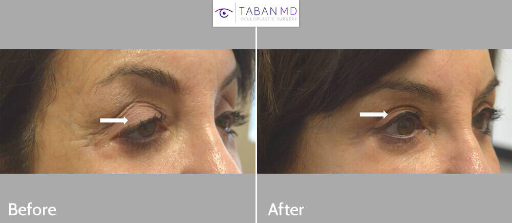 65 year old woman, with droopy upper eyelids (forcing her to keep her eyes open with brow compensation) underwent droopy upper eyelid ptosis surgery and blepharoplasty. Before and 2 months after photos are shown. Note more youthful, relaxed eye appearance.