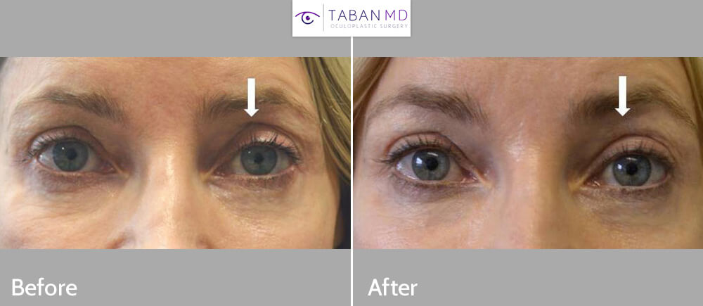 Middle age woman, with history of previous eyelid surgery (done by another surgeon) complained of upper eyelid asymmetry with left side more sunken, hollow. She received 0.5cc eyelid filler (Belotero) in left upper eyelid, brow to achieve better symmetry. Before and 1 month after cosmetic eyelid filler injection photos are shown. The eyelid filler result should last about a year.
