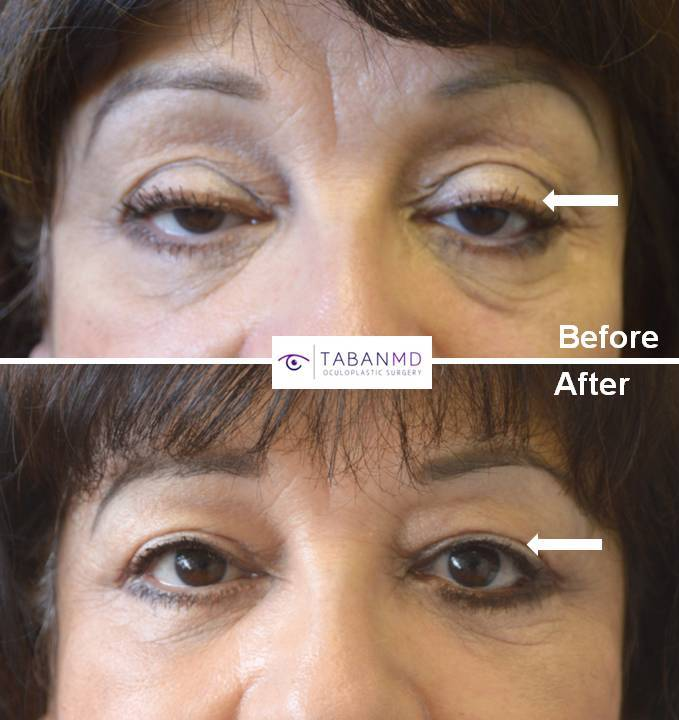 66 year old female with significant age-related droopy upper eyelids (ptosis) underwent droopy upper eyelid ptosis repair and blepharoplasty. Before and 3 months after eyelid surgery photos are shown.