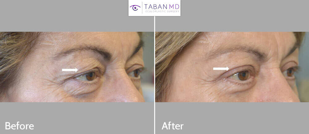 58 year old woman, with saggy droopy upper eyelids, underwent upper eyelid ptosis surgery and upper blepharoplasty (eyelid lift). Before and 3 months after photos are shown. Note more youthful, natural eye appearance.