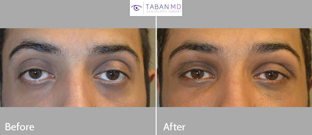 Young Middle-Eastern male, complained of inherited frog eyes with bulging eyes, lower eyelid retraction with sclera show, and sad eyes. He underwent cosmetic orbital decompression, lower eyelid retraction surgery, and canthoplasty to give more Almond Eye shape eyes. Before and 3 months postoperative photos are shown. (He could also benefit from upper eyelid ptosis repair which he declined.)