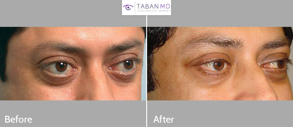 Middle age Indian male, with inherited bulgy eyes, underwent bilateral cosmetic orbital decompression surgery. Before and 3 months postoperative photos are shown.