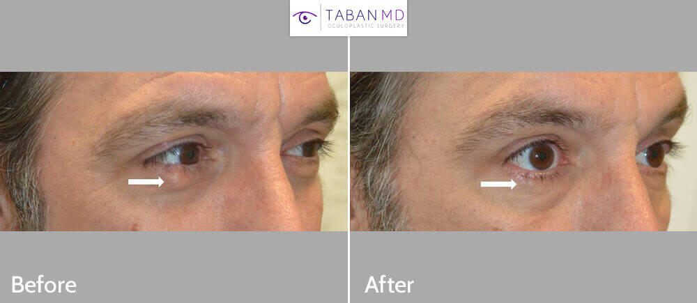 49 year old male, with large right lower eyelid stye (chalazion) underwent scarless removal of the chalazion using inside eyelid incision. Before and 1 month after photos are shown.
