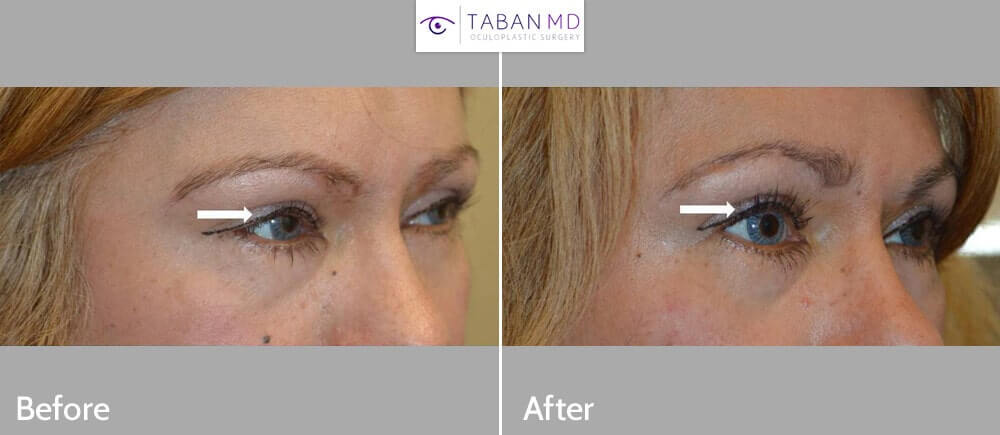 56 year old female, with droopy upper eyelids (ptosis) underwent scarless internal upper eyelid ptosis surgery. Before and 2 months after cosmetic eyelid surgery photos are shown.