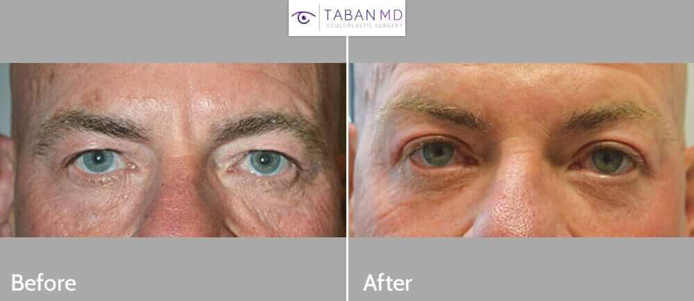 Middle age man, complained of heavy upper eyelids. He underwent cosmetic upper blepharoplasty (skin removal) under local anesthesia in the office. Before and 3 months postoperative photos are shown.