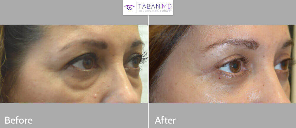 51 year old female, complained of looking tired and older due to saggy hooded upper eyelid and under eye bags and dark circles. She underwent upper blepharoplasty (eyelid lift), lower blepharoplasty (transconjunctival with fat repositioning and skin pinch removal) and lateral pretrichial brow lift (using temple hairline incision). Before and 3 months after cosmetic eyelid surgery photos are shown. Note natural rested eye appearance.