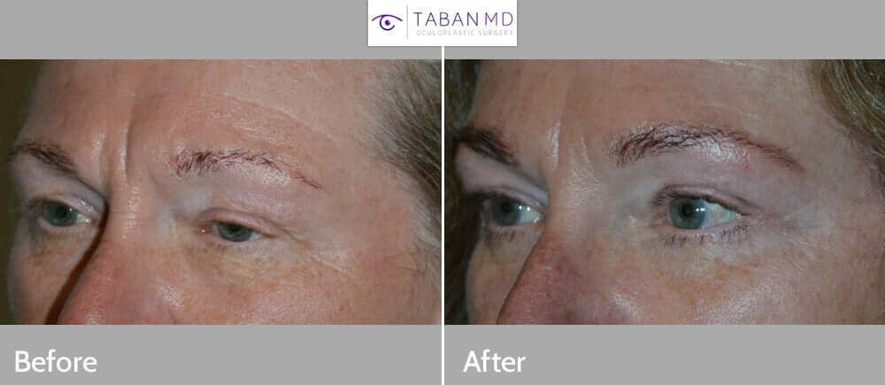56 year old female, with droopy upper eyelids (ptosis) and excess loose skin and wrinkles around eyes complained of looking older and tired. She wanted cosmetic eyelid surgery to improve her appearance. She underwent droopy upper eyelid surgery (to lift upper eyelids and open her eyes by tightening the levator muscle which is responsible for lifting the upper eyelid), upper blepharoplasty (to remove extra upper eyelid skin), lower blepharoplasty (transconjunctival with fat repositioning and skin pinch removal), and lateral pretrichial brow lift (incision hidden along temple hairline), under local anesthesia in the office. Note more rested youthful eye shape and appearance, with natural looking results. Preop and 3 months postoperative results are shown