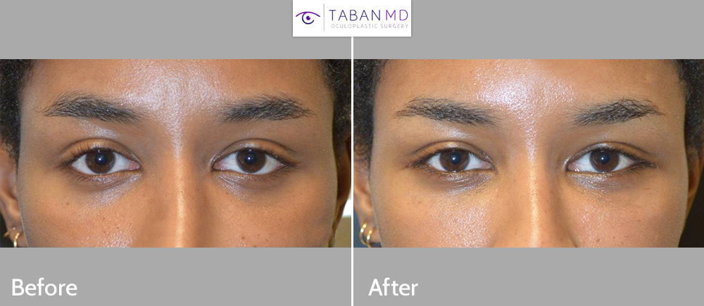 Young person, underwent combined almond eye surgery and infraorbital rim implant and scarless internal upper eyelid ptosis surgery. Note more almond shaped eyes.