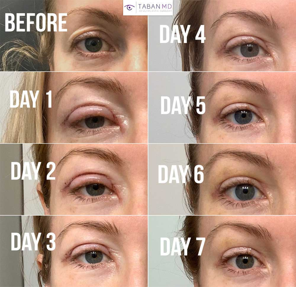 Young woman underwent upper blepharoplasty and upper eyelid filler injection. Note healing during the first week after surgery.