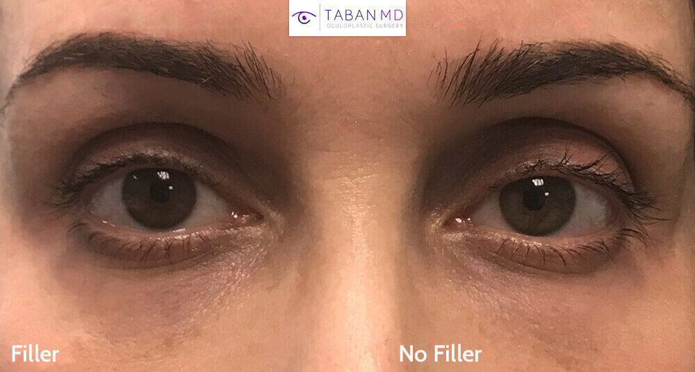 The youthful effect of upper eyelid filler in an older female patient.