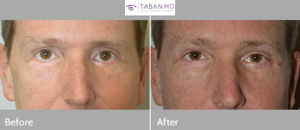 Bilateral Lower Eyelid Revision Oculoplasty