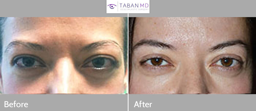 38 year old female, with bulging protruding eyes from Graves disease underwent bilateral orbital decompression surgery (bone and fat removed from behind the eyeball) resulting in eyeball going back), giving more natural eye shape and function. Preoperative and 3 months postoperative photos are shown. (You can listen to this patient share her story by visiting the video of her on the testimonial page.)