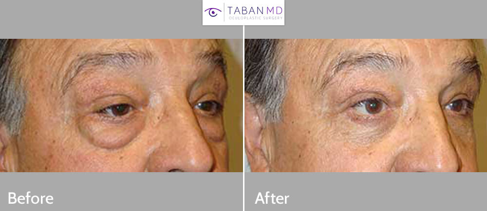 Before (left) and 6 weeks after (right) lower transconjuctival blepharoplasty.
