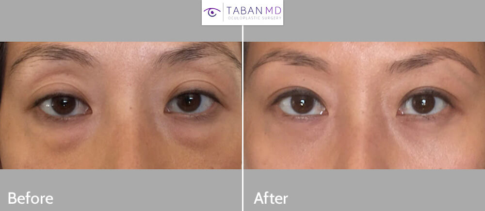 29 year old Asian female, complained of under eye dark circles and looking tired. She was tired of putting make up on to partially cover the problem. She underwent transconjunctival lower blepharoplasty with fat repositioning (using hidden stitch-less incision inside the lower eyelid, the fat pocket were redistributed to fill the hollow tear trough area), under local anesthesia in the office, with quick recovery. Note smooth under eye area after surgery with resolution of the under eye dark circles and bags. Before and 1 month after cosmetic lower eyelid blepharoplasty photos are shown.