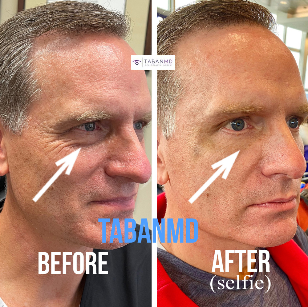 50+ year old ophthalmologist (Dr DeBry) with under eye fat bags, flew from Las Vegas to Los Angeles. He underwent lower blepharoplasty to improve under eye appearance. Note more youthful eye appearance. His surgical video can be found on our website.