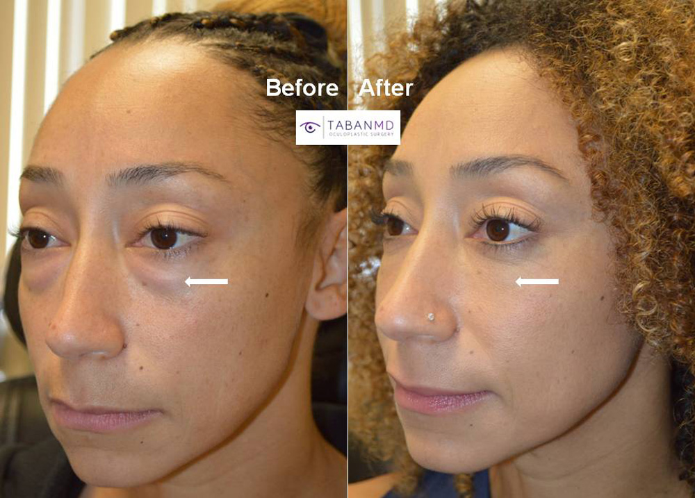 Famous athlete from Ninja Warrior TV show underwent scarless lower blepharoplasty to address genetic under eye fat bags. Here whole surgical video can be found on the website.