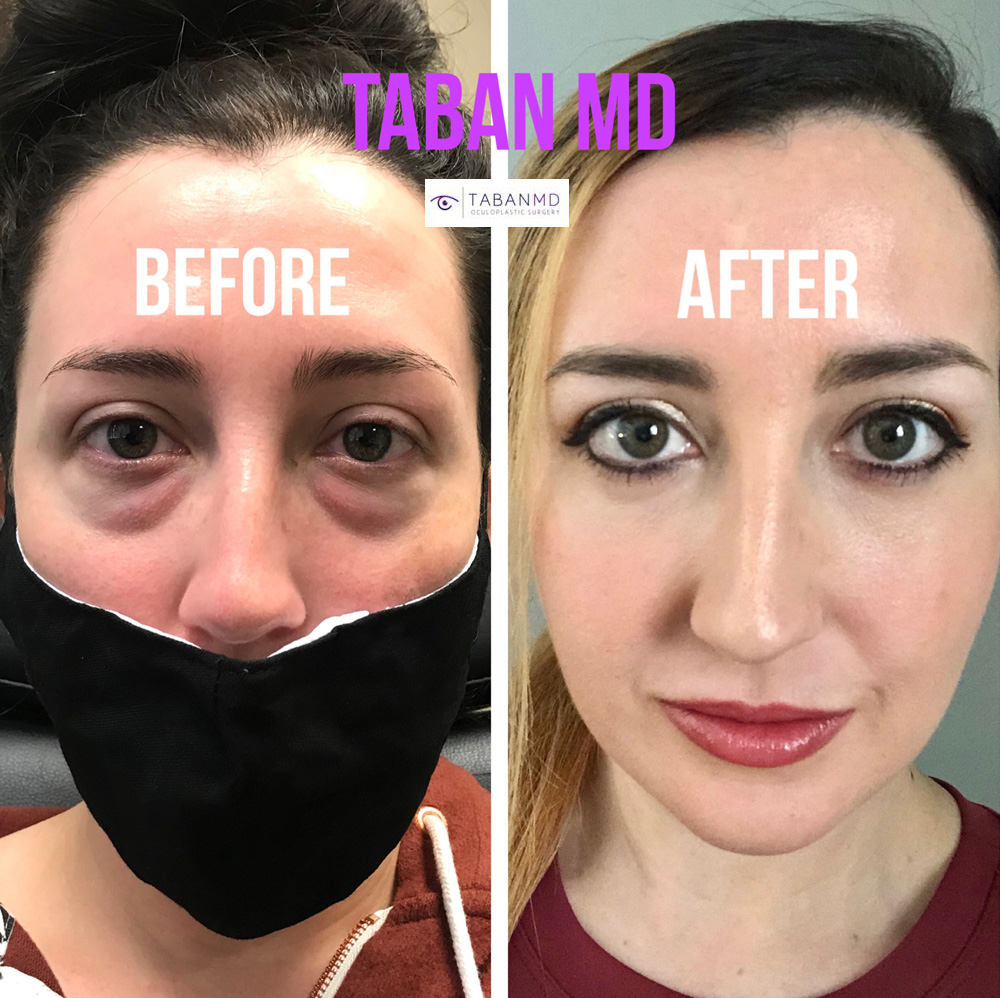 Beautiful woman with obvious under eye fat bags causing tired eyes, underwent scarless lower blepharoplasty (transconjunctival technique with eye fat bags repositioning). Her surgical video can be found on our website.
