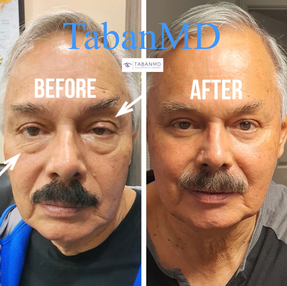 70 year old gentleman, with tired older eye appearance, underwent male upper blepharoplasty, lower blepharoplasty, and asymmetric droopy upper eyelid ptosis surgery. Note more youthful eyes with natural appearance.