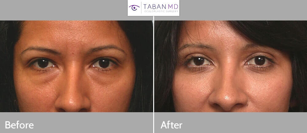 "30 year old young mom, wanted to look more refreshed after her pregnancy (""eyelid mommy makeover""). She complained of hooded eyes and under eye bags with dark circles. She underwent cosmetic upper blepharoplasty (to remove extra skin hanging on lashes) and lower blepharoplasty (transconjunctival approach with fat redraping). Note both upper and lower eyelids look better with the eyes more refreshed and youthful and less tired. This cosmetic eyelid procedure was done under local anesthesia in the office. Preop and 2 months postoperative results are shown."