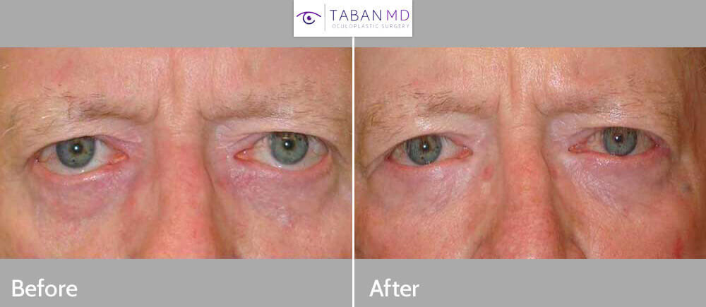 58 year old male, with lower eyelid retraction (secondary to genetics and skin tightening from chronic sun damage), underwent bilateral lower eyelid retraction surgery (with internal hard palate graft, midface lift, and canthoplasty). Before and 3 months postoperative photos are shown.