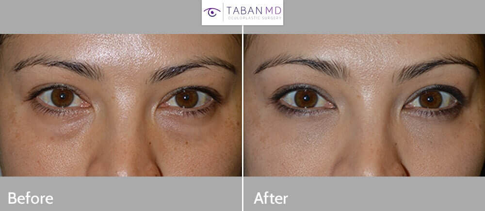 28 year old female, complained of constantly looking tired because of her under eye bags. She has tried to cover it with makeup but not effective. She wanted a long term solution, rather than short-term treatment for hollow under eyes (dark circles) such as filler injection. She underwent cosmetic transconjunctival lower blepharoplasty with fat repositioning (using hidden stitch-less incision inside the lower eyelid, the fat pocket were redistributed to fill the hollow tear trough area) plus conservative skin removal using skin pinch method. The cosmetic eyelid procedure was done under local anesthesia in the office, with quick recovery. Preop and 2 months postoperative photos are shown.