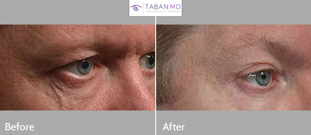 Before (left) and after (right) lower eyelid vein removal by sclerotherapy.