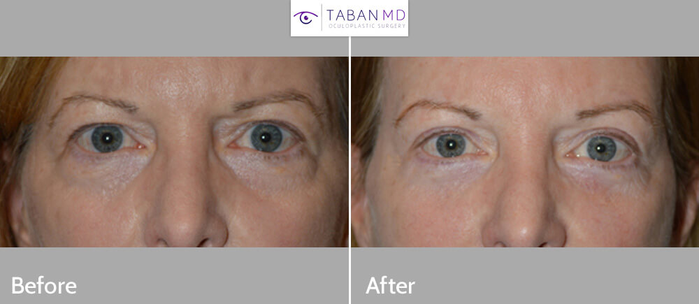 60+ year old female, wanted to look less tired and better for her age. We note she has excess upper eyelid skin covering her lashes, droopy upper eyelids (ptosis), droopy outer forehead/brows, and under eye bags. She underwent upper blepharoplasty (to remove loose upper eyelid skin and puffy upper eyelids), upper eyelid ptosis repair (to open the eyes by lifting the upper eyelids), lateral brow lift (outer portion of eyebrow lifted using temple pretrichial incision), and lower blepharoplasty (transconjunctival with fat redistribution). Note natural appearing, youthful eye appearance where she looks better for her age and less tired. Before and 3 months after eye plastic surgery photos are shown.