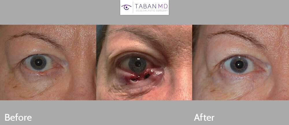 65 year old female, with right lower lid basal cell carcinoma (left photo). Central photo shows immediately after Mohs procedure to remove the eyelid skin cancer. The right photo shows 2 months after right lower eyelid cancer reconstruction using lateral Tenzel flap. Note natural appearing results with minimal hidden scarring, and complete eyelid function.