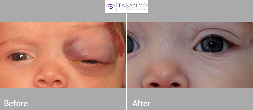 A young baby with massive right eyelid and orbit capillary hemangioma causing complete eye closure. This tumor was treated using medication (propronolol), with complete recovery. Before and 4 months after treatment photos are shown.