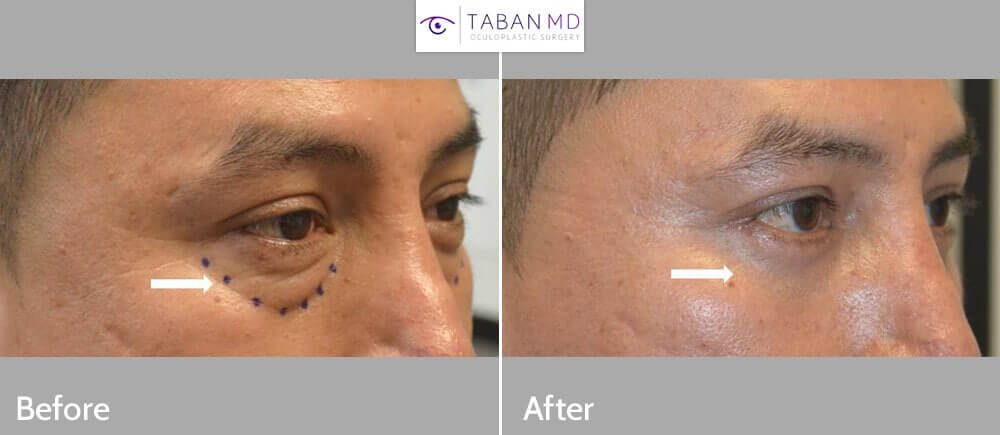 53 year old male, looking tired, underwent scarless transconjunctival lower blepharoplasty with eye fat repositioning to the hollow tear trough area (as depicted by dotted area). Before and 1 month after eyelid surgery photos are shown.