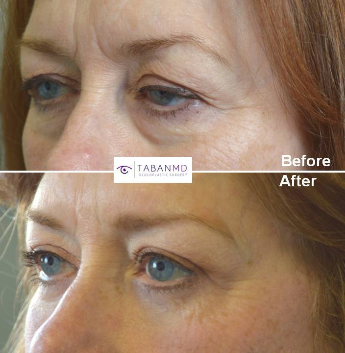 Lower 60+ year old female, looking tired and older, underwent droopy upper eyelid ptosis surgery, upper blepharoplasty (eyelid lift), lower blepharoplasty, and lateral brow lift. Before and 2 months after cosmetic eyelid surgery photos are shown. Note more youthful natural results.