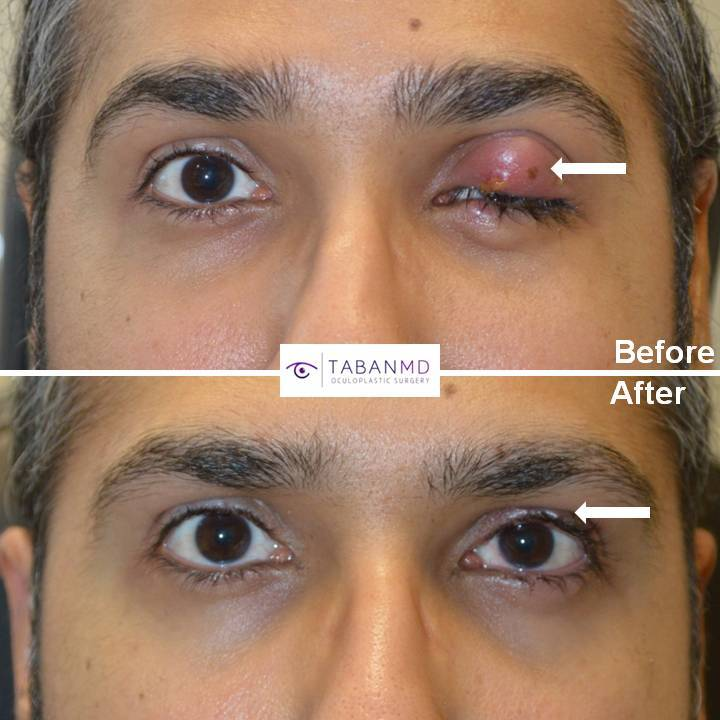 40+ year old man underwent removal of severe large infected left upper eyelid chalazion (stye).