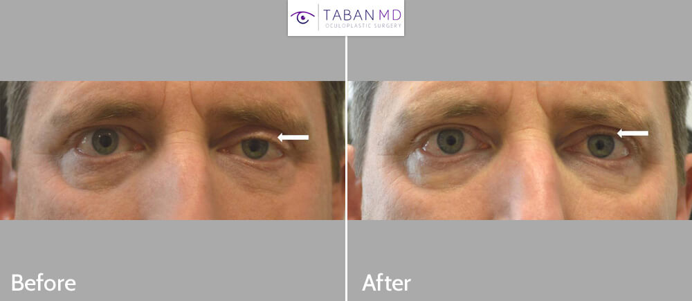Middle age man underwent scarless left droopy upper eyelid ptosis surgery. Before and 6 weeks after photos are shown.