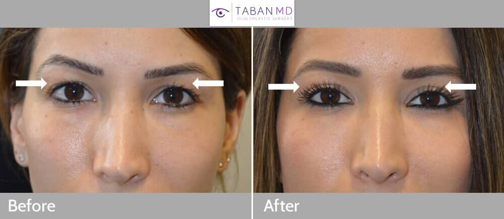 Young beautiful lady with hooded upper eyelids (with skin touching the lashes) underwent upper blepharoplasty (eyelid lift). Before and 2 months after eyelid surgery photos are shown.