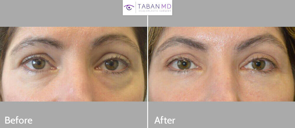 45 year old female, complained of under eye bags and dark circles. She underwent nonsurgical treatment using Restylane hyaluronic acid gel filler injection in the hollow tear trough area under eyes. Before and 1 month after lower eyelid filler injection photos are shown.