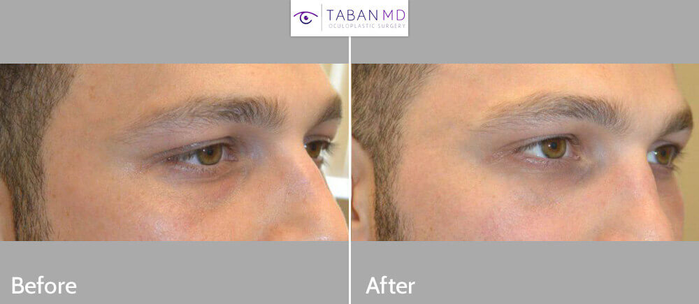 Young male, complained of sunken eyes and dark circles due to tear trough hollowness under eyes. He received Belotero and Restylane filler injection under eyes. Before and 1 month after under eye filler injection photos are shown.