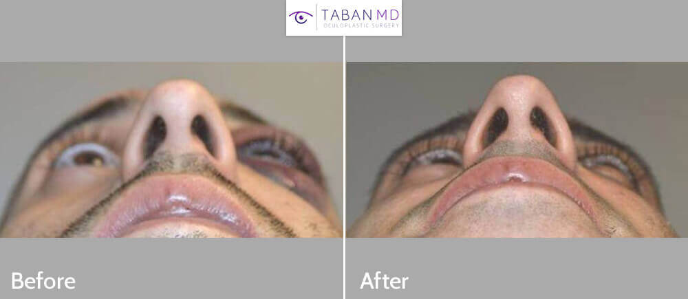 Young male suffered left zygomatic arch and orbital blowout fracture (tripod fracture) from blunt trauma. He underwent tripod fracture repair and orbital floor fracture repair. Before and 1 month after surgery photos are shown.