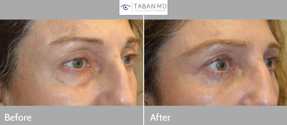 56 year old female, complained of looking tired and older. She underwent transconjunctival lower blepharoplasty with fat/bags repositioning (to fill hollow tear trough area, dark circles) and skin pinch removal. Note more rested eye appearance without change in eye shape with natural results. She also had concurrent skin only upper blepharoplasty. Before and 6 weeks after cosmetic quad-blepharoplasty photos are shown. (In future, she would benefit from upper eyelid filler injection to improve pre-existing hollow, sunken upper eye area.)